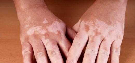Почему появляются белые пятна на коже?